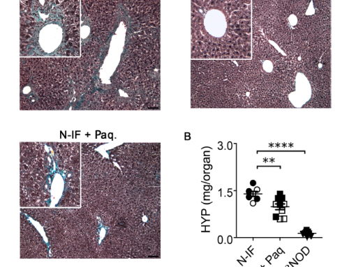 New publication on the N-IF mouse